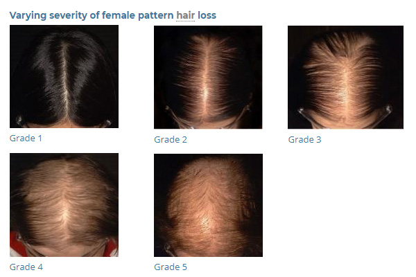 FEMALE PATTERN HAIR LOSS MyNLrx Adorable Female Pattern Baldness Pictures